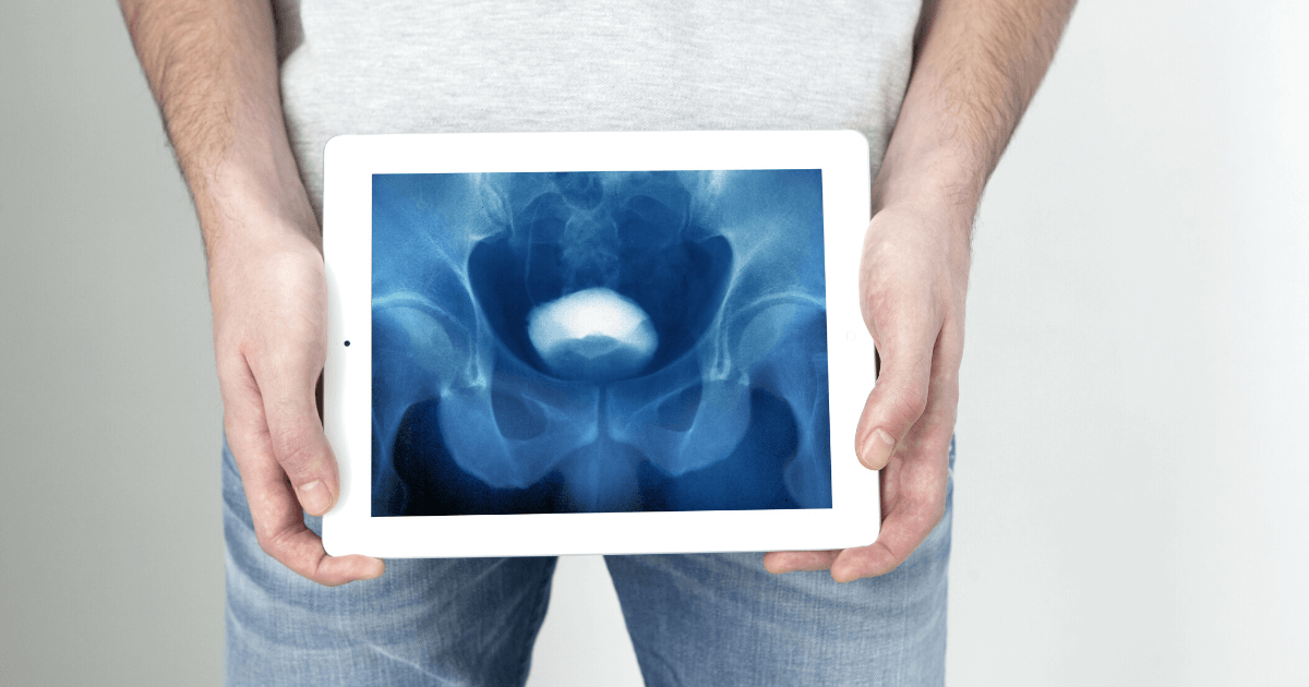 Can You Strengthen a Bladder to Reduce Male Urinary Incontinence?